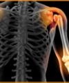 Luciano Pascarelli: Ortopedista