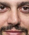 Fabio Adams: Oftalmologista