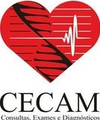 Cecam  Morumbi - Ultrassonografia Das Artérias Carótidas E Vertebrais Com Doppler